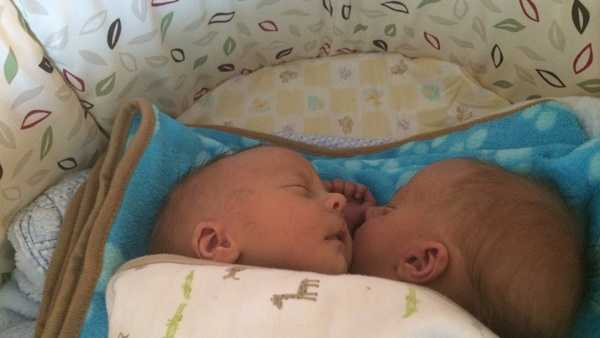 Conjoined twins Andrew and Garrett Stancombe were born April 10 and are now at home in Indiana, Pa.