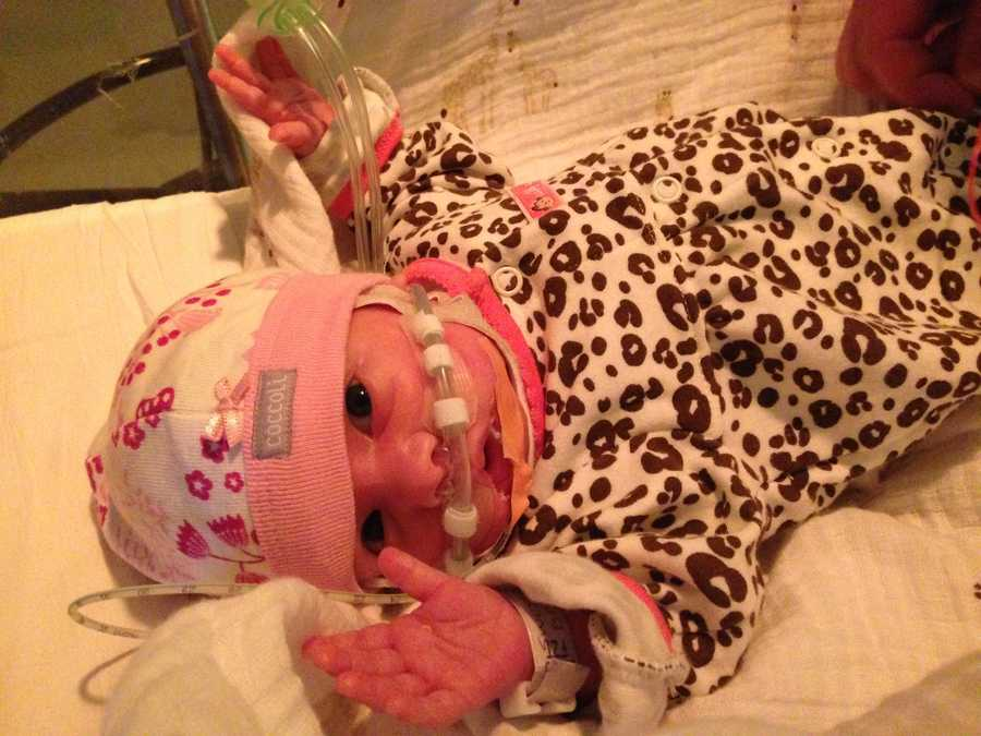 """Only 2 days old, Riley's lungs started to bleed. Doctors worked on her but mom said it was a """"close call."""""""