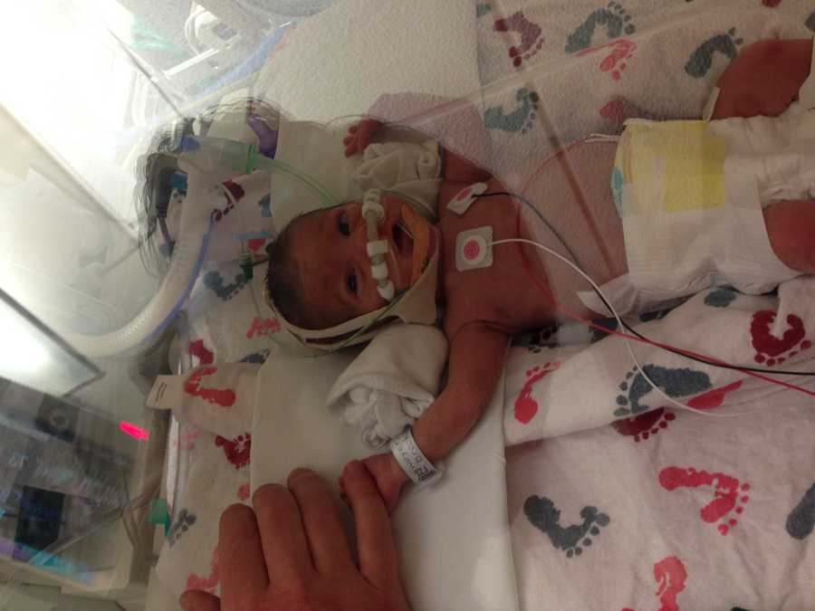 Riley is getting stronger each day. Her mom says she's a miracle.