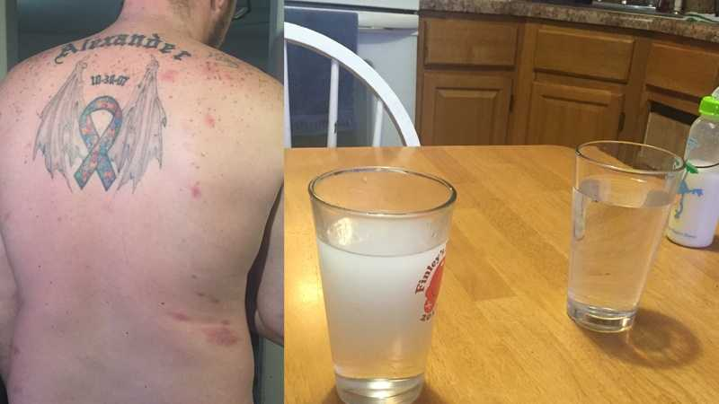 A family claims these skin marks (left) came from using cloudy drinking water (right).