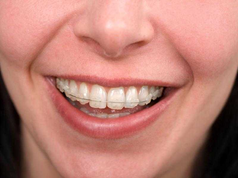 Little Known Facts About Does Medicaid Pay For Braces.