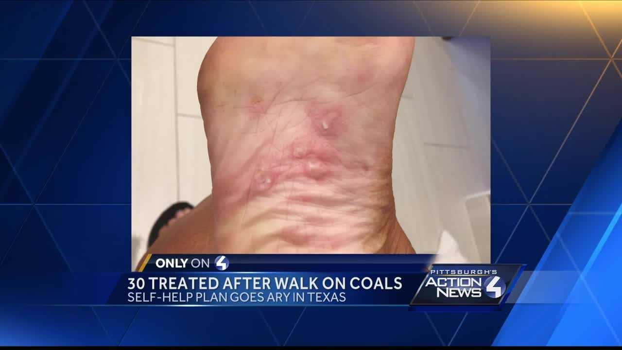 A Canonsburg woman was among those who were injured last week while walking over hot coals at a four-day motivational event in Dallas hosted by Tony Robbins.