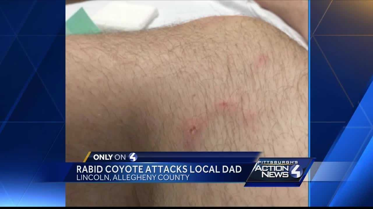 img-Father attacked by rabid coyote fights back and survives