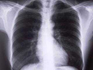 Definition: Pneumonia is an infection of the lungs that can cause mild to severe illness in people of all ages.