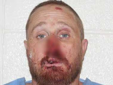 Adam Lee Hensley: Accused of stabbing a man to death (Picture blurred due to graphic nature of injury)