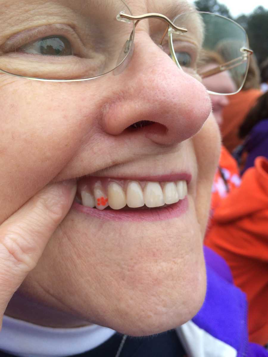 Fan shows Clemson love with tooth tattoo