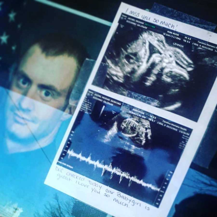 The most poignant memento left at the memorial was this ultrasound, left by Jacobs' wife, Meghan.