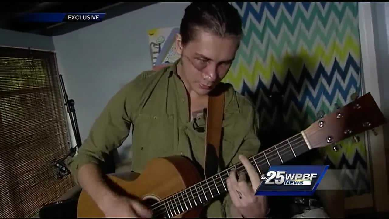 A local musician is recovering after he was seriously hurt when a 30-pound piece of metal crashed through his windshield and hit him in the face.