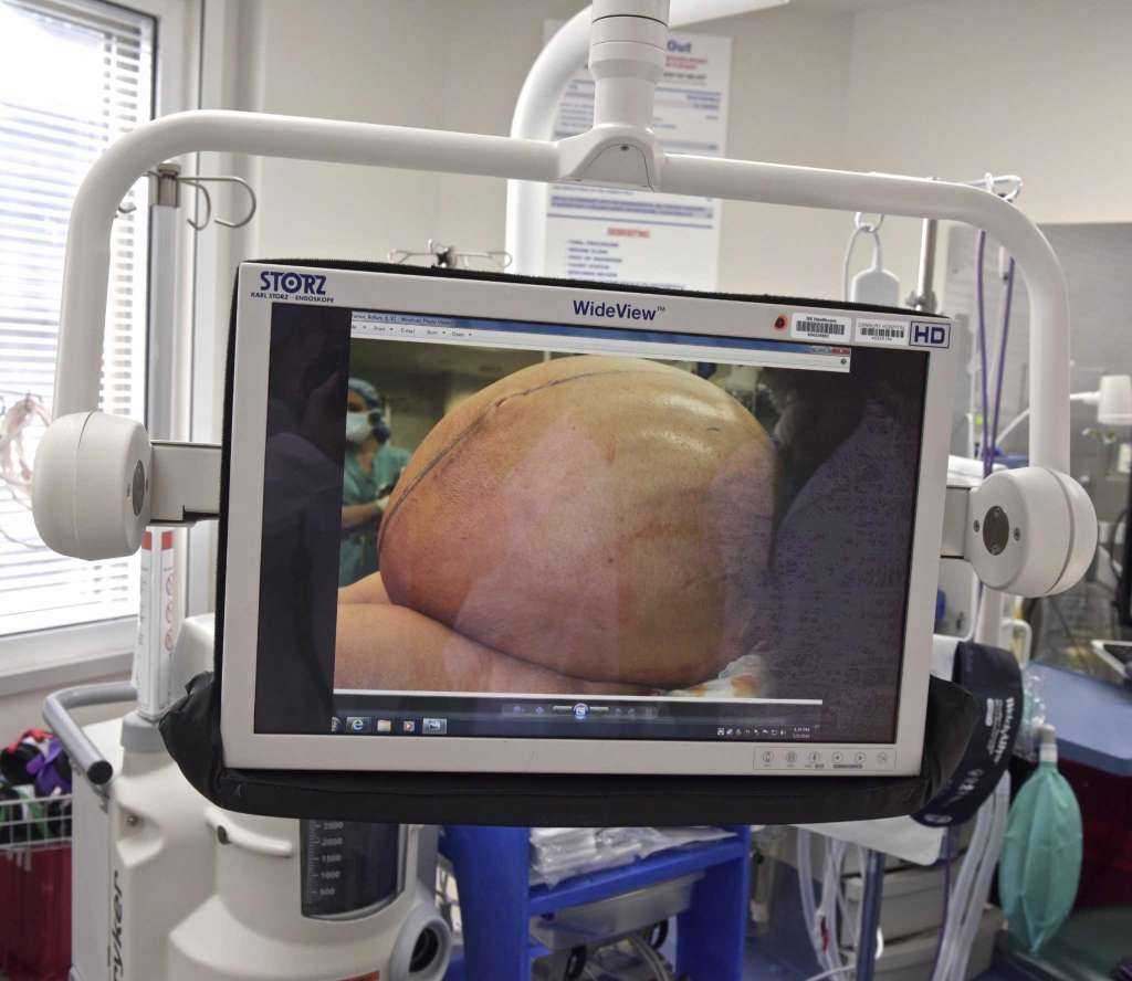Image result for Danbury Hospital surgeons remove woman's 132-pound tumor