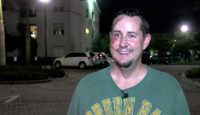 Bear attacks Packers fan in southwest Florida