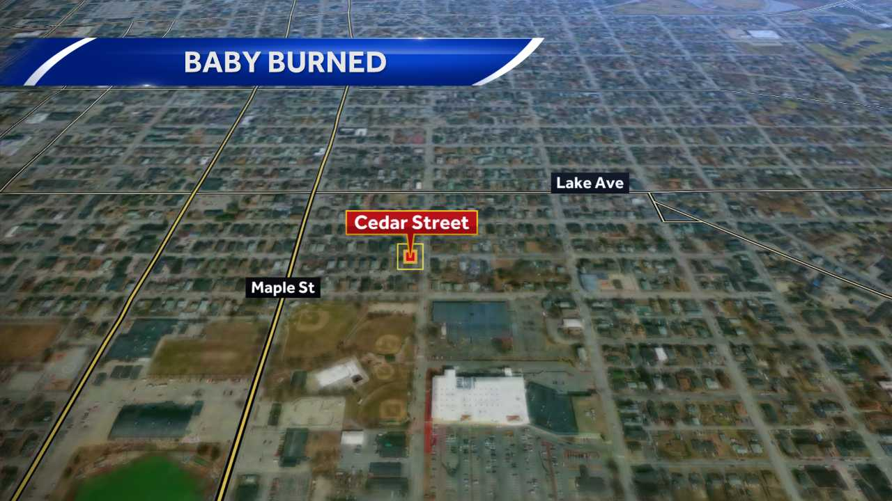 Baby burned in Manchester