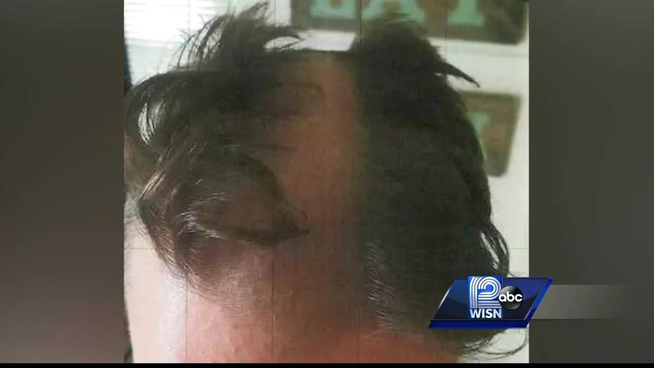 Barber snips man's ear, shaves furrow down middle of head