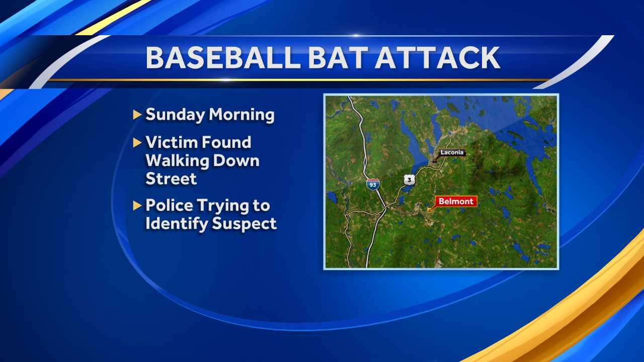 Police looking for man who attacked victim with bat
