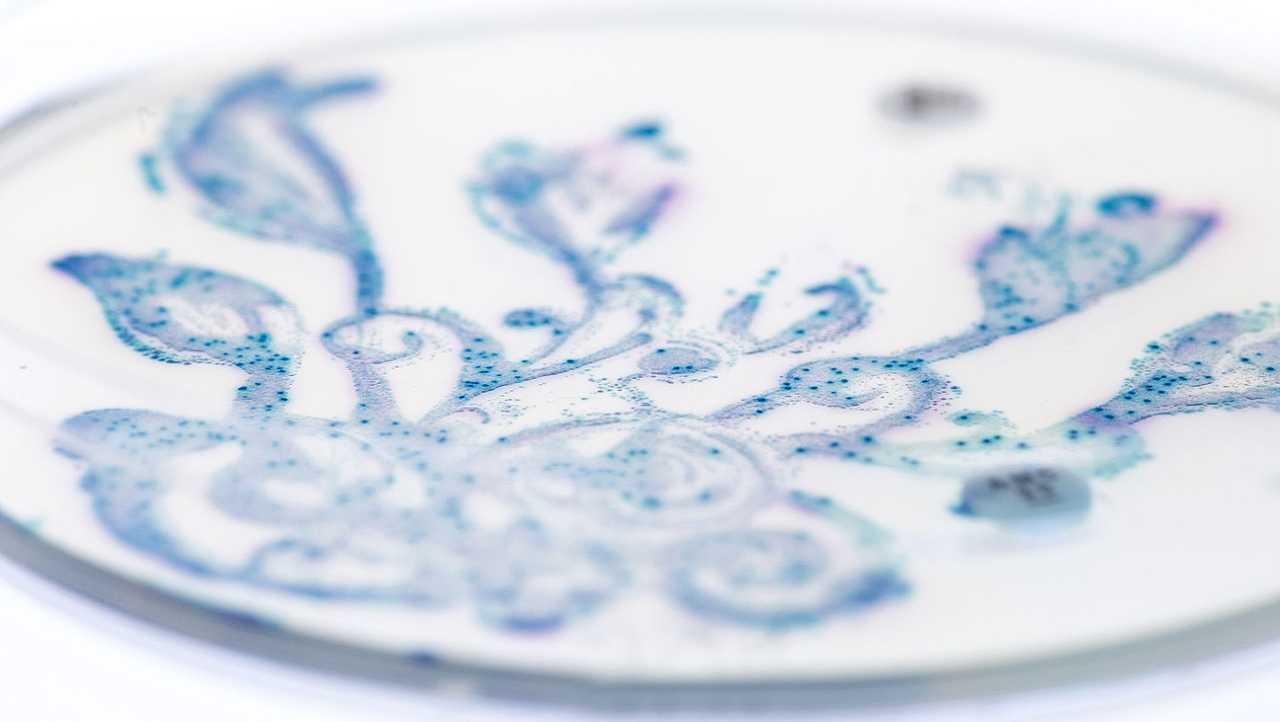 The photo depicts a sample of helpful gut bacteria grown on color-changing agar.
