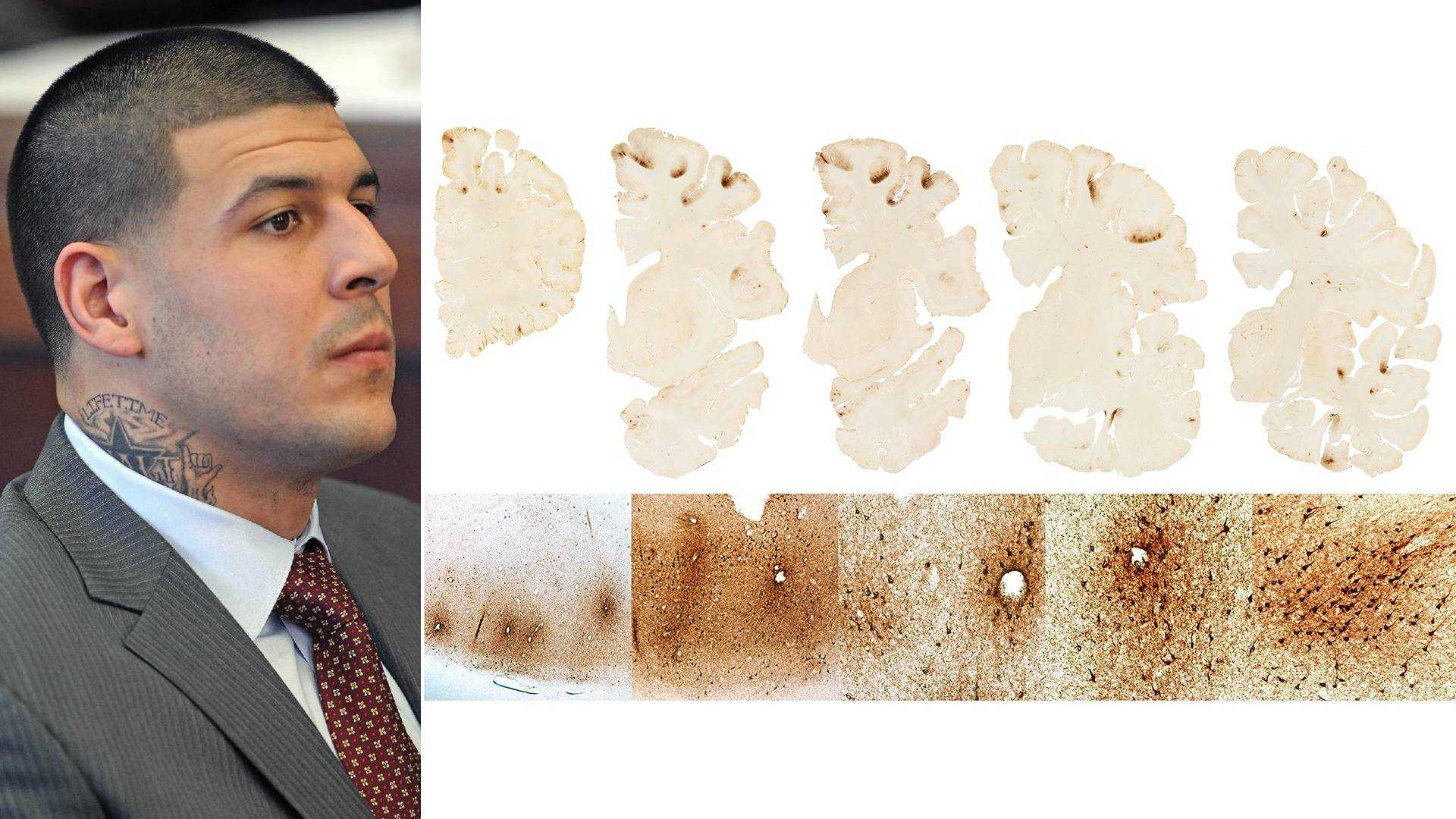 Aaron Hernandez and CTE brain image from BU CTE Study