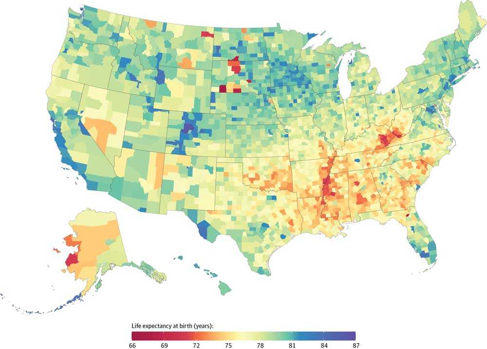 Map reveals how life expectancy varies across Massachusetts US