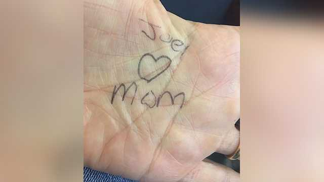 A message Stacey Gagnon's son, Joel, wrote on the palm of her hand after she helped him through a tough moment related to his disfigurement.