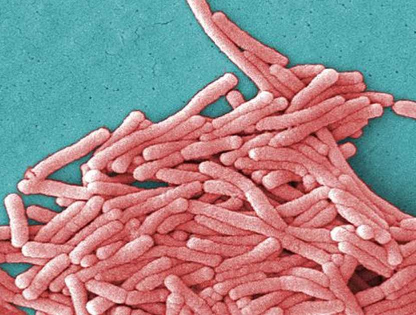 Hotel guests contract Legionnaires' disease