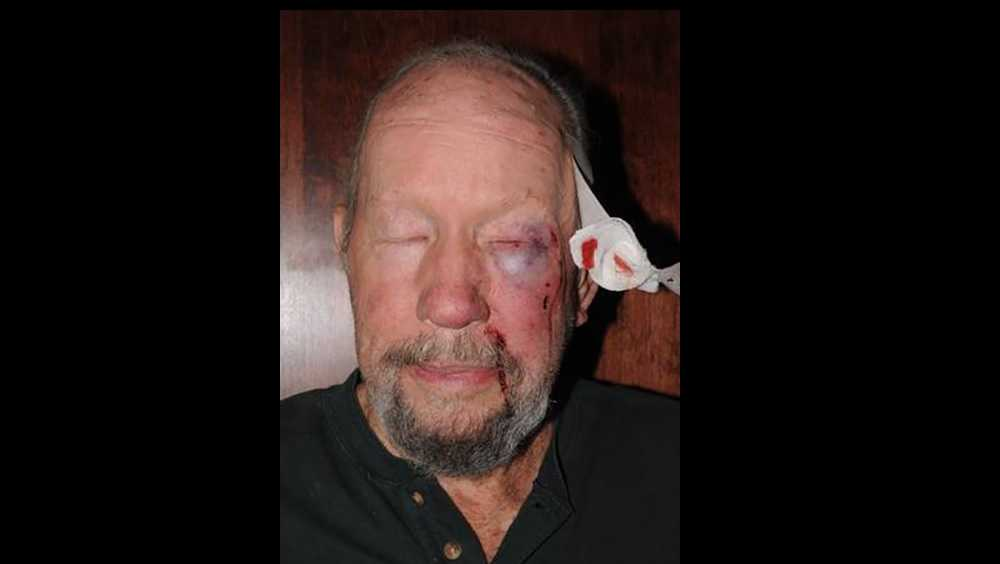 Club owner Mac Teal, after assault