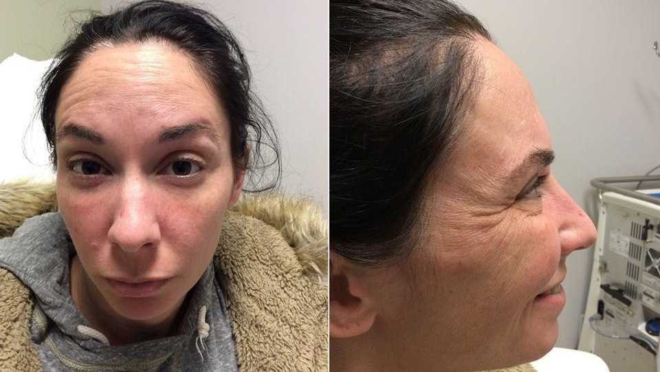 Police said this woman stole Botox and a syringe from