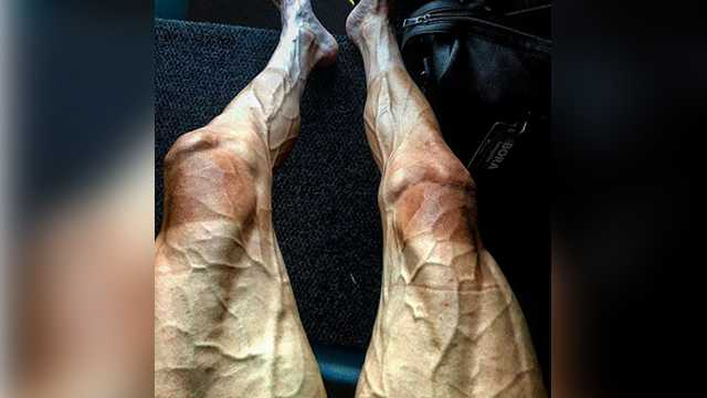 Tour de France rider Pawel Poljanski showed the effects of the grueling race in this Instagram post on July 18, 2017.