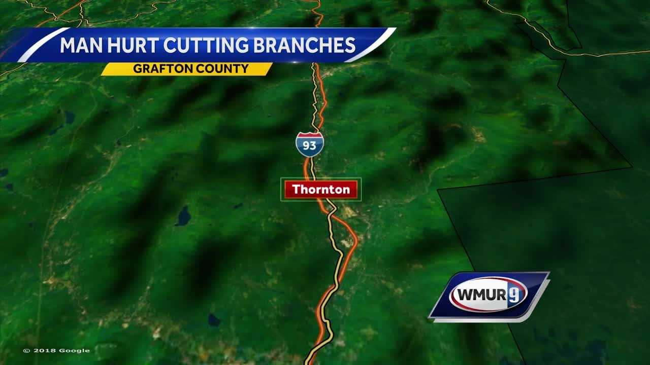 Man hurt cutting tree branches in Thornton