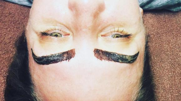 Women's battle with facial hair
