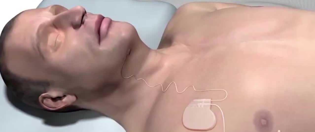 New hope for those who suffer with sleep apnea - Orlando news - NewsLocker